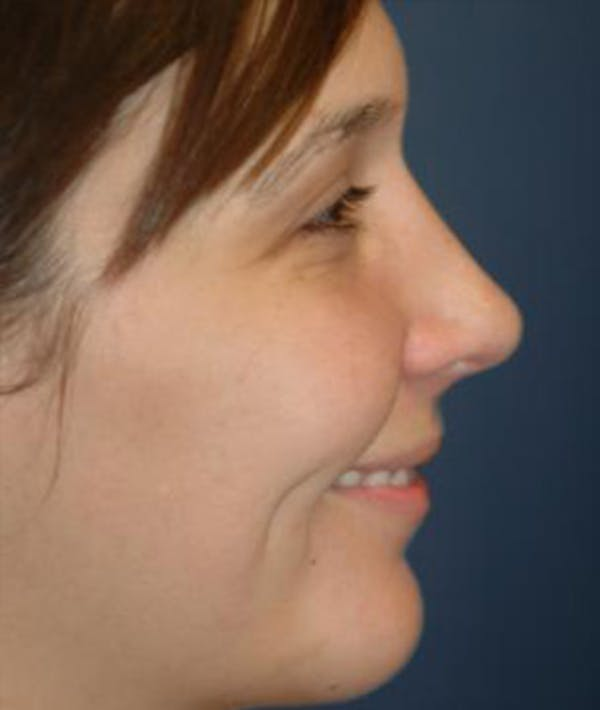 Chin Augmentation Gallery - Patient 4861487 - Image 4