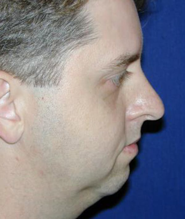 Chin Augmentation Gallery - Patient 4861492 - Image 1