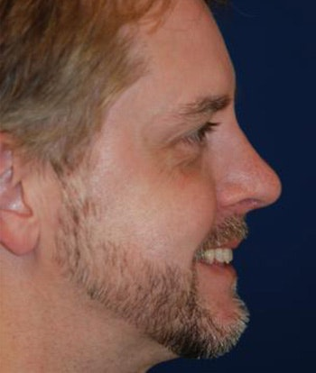 Chin Augmentation Gallery - Patient 4861492 - Image 2
