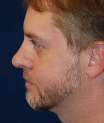 Chin Augmentation Gallery - Patient 4861492 - Image 4