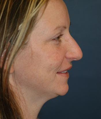 Chin Augmentation Gallery - Patient 4861496 - Image 1