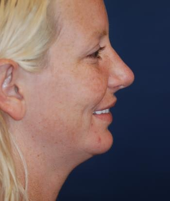 Chin Augmentation Gallery - Patient 4861496 - Image 2