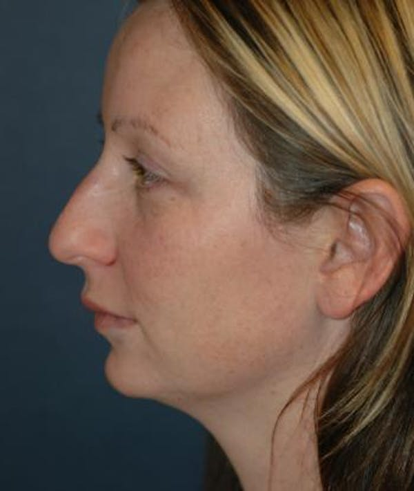 Chin Augmentation Gallery - Patient 4861496 - Image 3