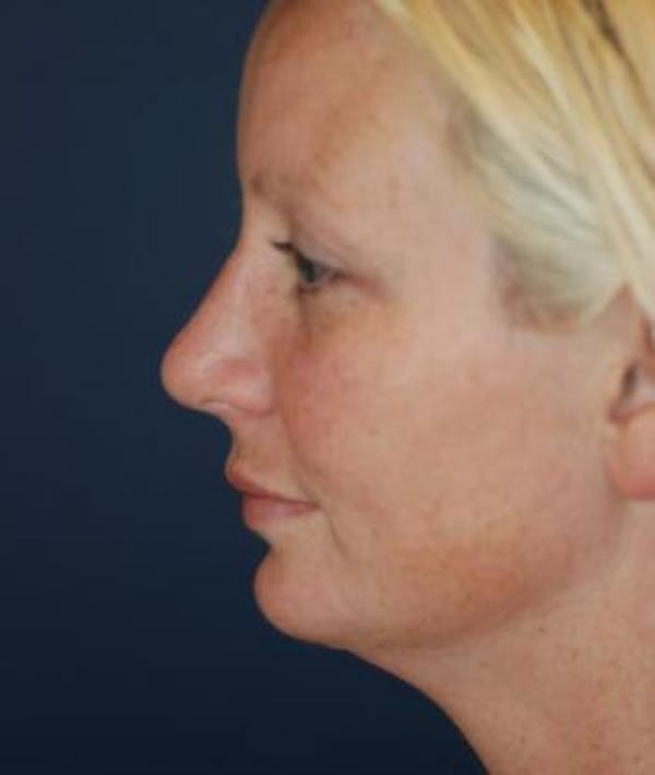Chin Augmentation Gallery - Patient 4861496 - Image 4