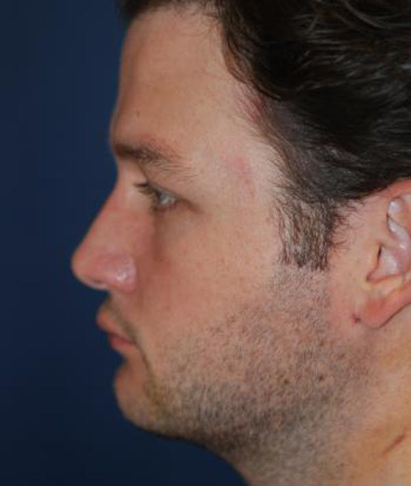Chin Augmentation Gallery - Patient 4861498 - Image 3