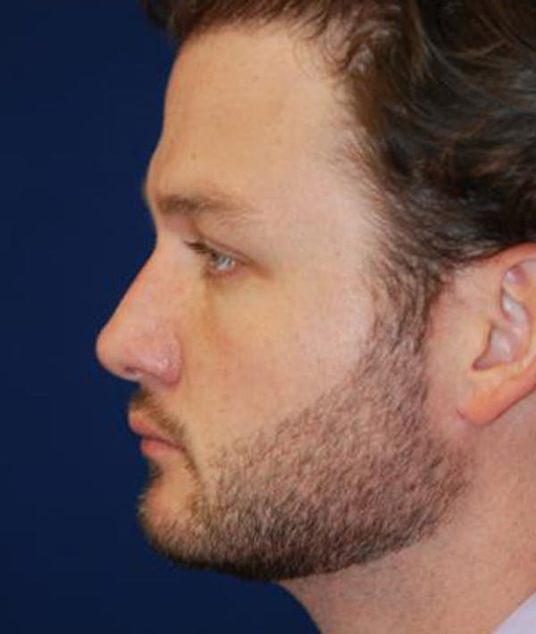 Chin Augmentation Gallery - Patient 4861498 - Image 4