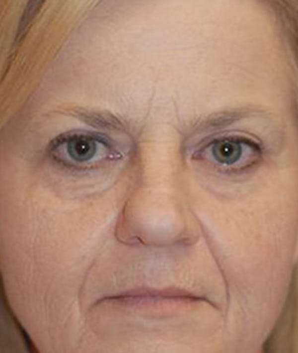Before & After Eyelid Surgery