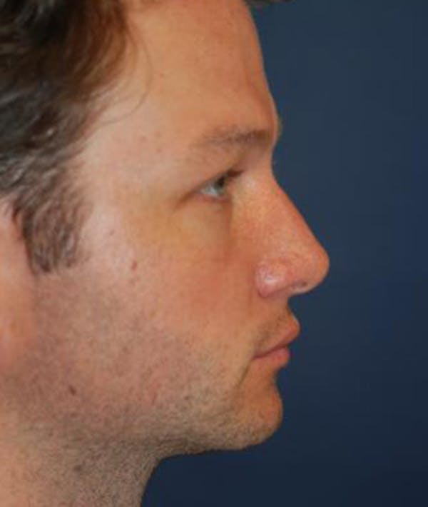 Chin Augmentation Gallery - Patient 4861498 - Image 5