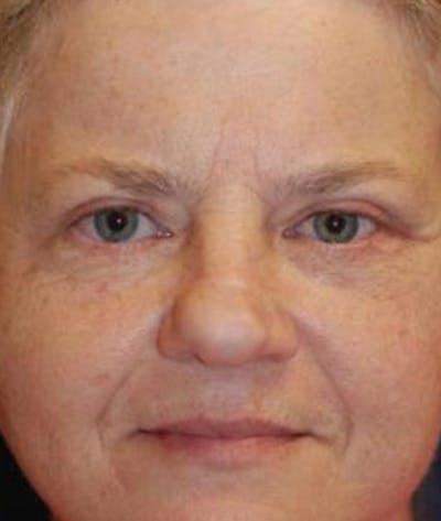 Eyelid Lift (Blepharoplasty) Gallery - Patient 4861501 - Image 2