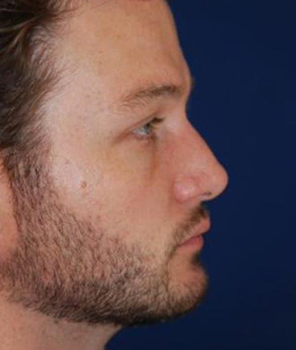 Chin Augmentation Gallery - Patient 4861498 - Image 6