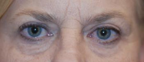 Eyelid Lift (Blepharoplasty) Gallery - Patient 4861501 - Image 3