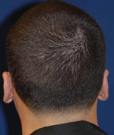 Ear Pinning (Otoplasty) Gallery - Patient 4861500 - Image 4