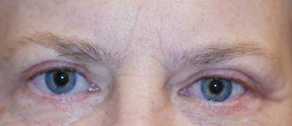 Eyelid Lift (Blepharoplasty) Gallery - Patient 4861501 - Image 4