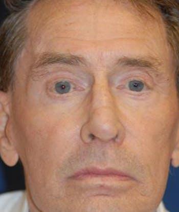 Eyelid Lift (Blepharoplasty) Gallery - Patient 4861504 - Image 1
