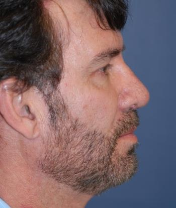 Chin Augmentation Gallery - Patient 4861506 - Image 2