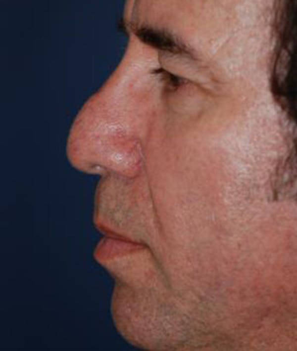 Chin Augmentation Gallery - Patient 4861506 - Image 3