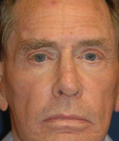 Eyelid Lift (Blepharoplasty) Gallery - Patient 4861504 - Image 2