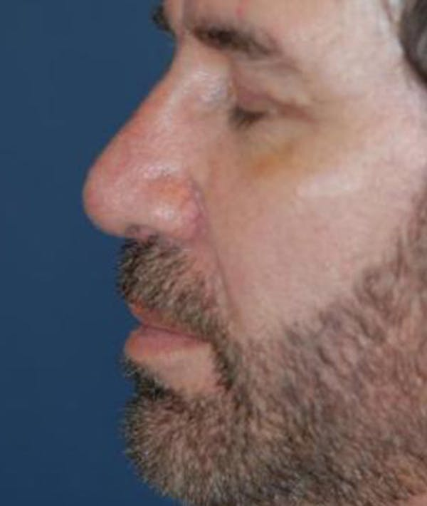 Chin Augmentation Gallery - Patient 4861506 - Image 4