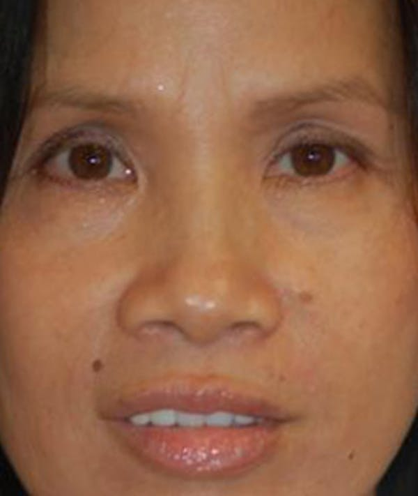Eyelid Lift (Blepharoplasty) Gallery - Patient 4861508 - Image 1