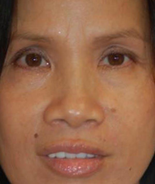 Eyelid Lift (Blepharoplasty) Gallery - Patient 4861508 - Image 1