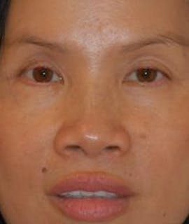 Eyelid Lift (Blepharoplasty) Gallery - Patient 4861508 - Image 2