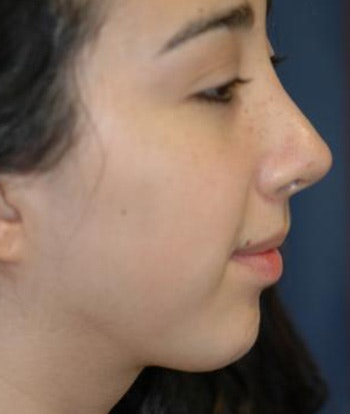 Chin Augmentation Gallery - Patient 4861510 - Image 2