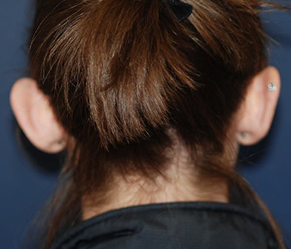 Ear Pinning (Otoplasty) Gallery - Patient 4861509 - Image 3