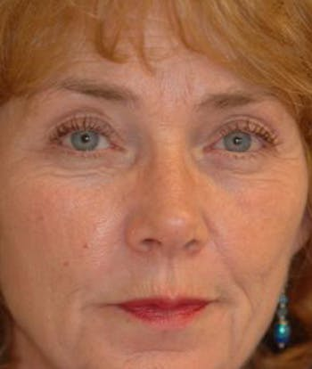 Eyelid Lift (Blepharoplasty) Gallery - Patient 4861512 - Image 1