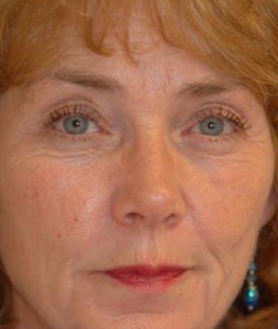 Eyelid Lift (Blepharoplasty) Gallery - Patient 4861512 - Image 4