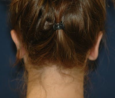 Ear Pinning (Otoplasty) Gallery - Patient 4861509 - Image 4