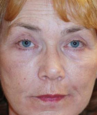Eyelid Lift (Blepharoplasty) Gallery - Patient 4861512 - Image 2