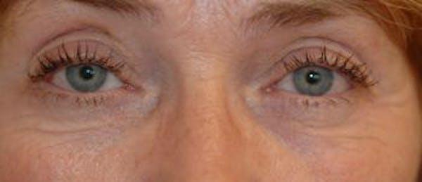 Eyelid Lift (Blepharoplasty) Gallery - Patient 4861512 - Image 3
