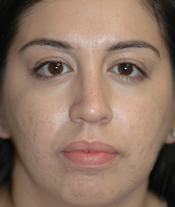 Chin Augmentation Gallery - Patient 4861515 - Image 1