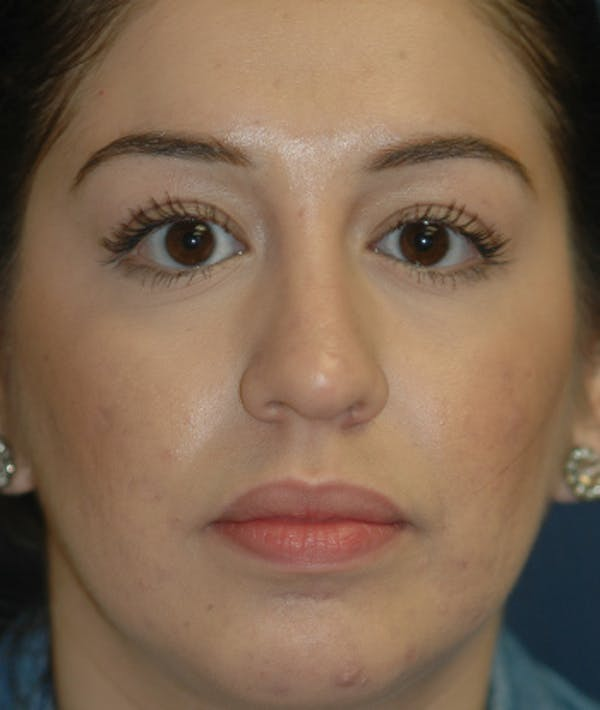 Chin Augmentation Gallery - Patient 4861515 - Image 2