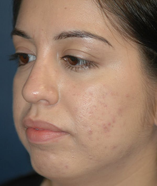 Chin Augmentation Gallery - Patient 4861515 - Image 3