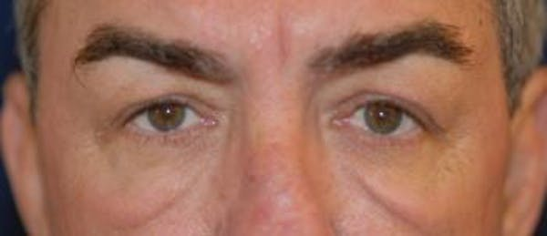 Eyelid Lift (Blepharoplasty) Gallery - Patient 4861514 - Image 3