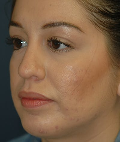 Chin Augmentation Gallery - Patient 4861515 - Image 4