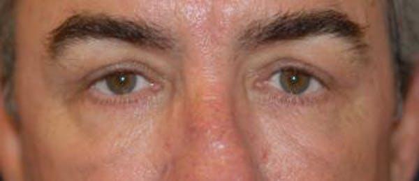 Eyelid Lift (Blepharoplasty) Gallery - Patient 4861514 - Image 4