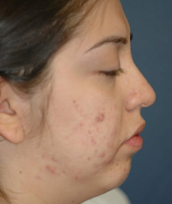 Chin Augmentation Gallery - Patient 4861515 - Image 5