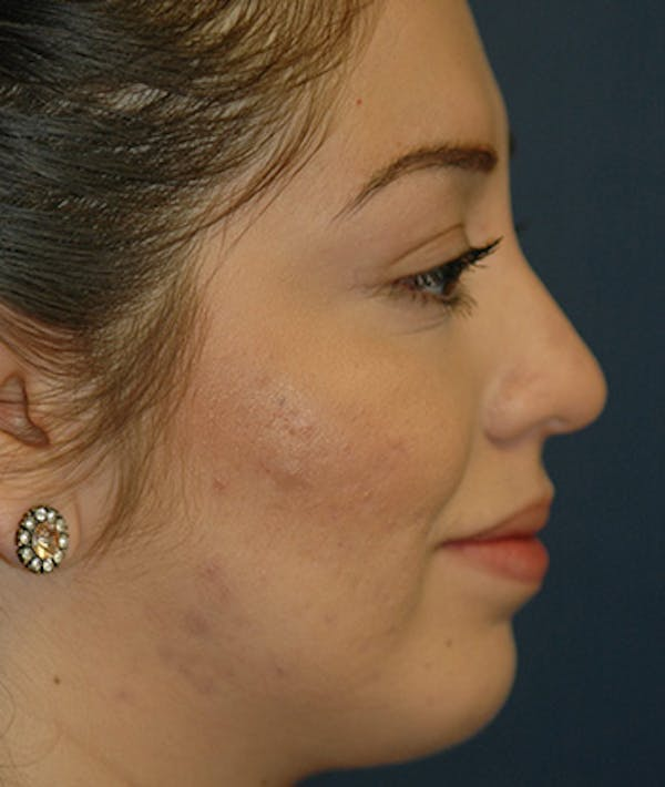 Chin Augmentation Gallery - Patient 4861515 - Image 6