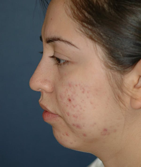 Chin Augmentation Gallery - Patient 4861515 - Image 7