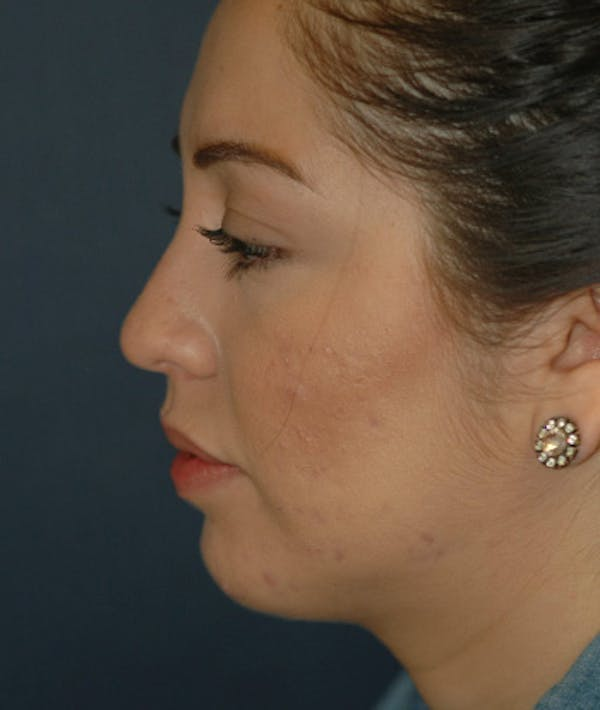 Chin Augmentation Gallery - Patient 4861515 - Image 8