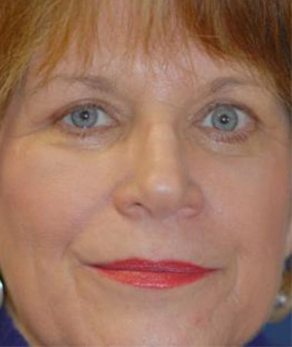 Eyelid Lift (Blepharoplasty) Gallery - Patient 4861516 - Image 2