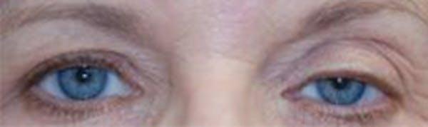 Eyelid Lift (Blepharoplasty) Gallery - Patient 4861516 - Image 3