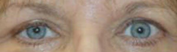 Eyelid Lift (Blepharoplasty) Gallery - Patient 4861516 - Image 4