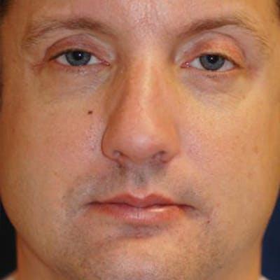 Eyelid Lift (Blepharoplasty) Gallery - Patient 4861522 - Image 8