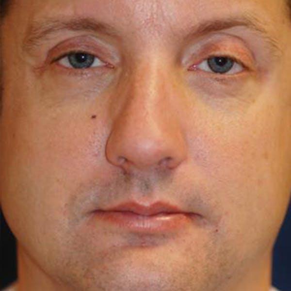 Eyelid Lift (Blepharoplasty) Gallery - Patient 4861522 - Image 1