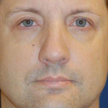 Eyelid Lift (Blepharoplasty) Gallery - Patient 4861522 - Image 2