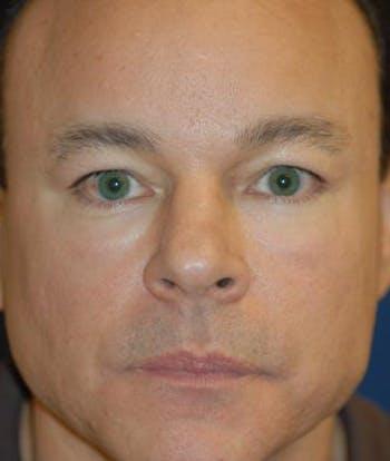 Eyelid Lift (Blepharoplasty) Gallery - Patient 4861524 - Image 1