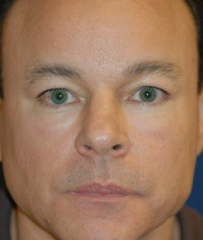 Eyelid Lift (Blepharoplasty) Gallery - Patient 4861524 - Image 9